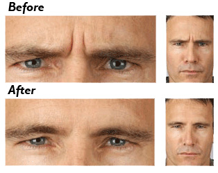Men's Botox and Fillers Calgary